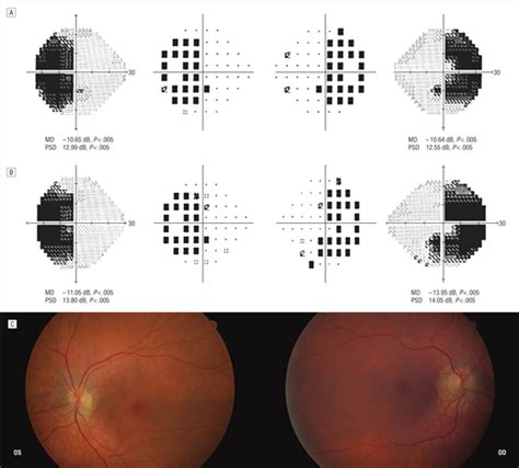 psd pattern standard deviation bitemporal hemianopia caused by retinal disease