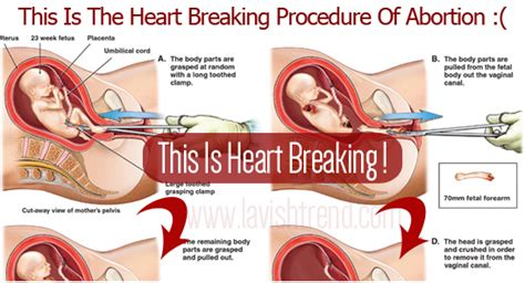 heartbreaking procedure of ab rtion this will make you