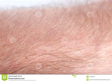 human skin with acne royalty free stock photos image 28330198 human skin royalty free stock photos image 12796548