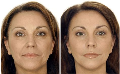 botox before and after pictures derma laser center
