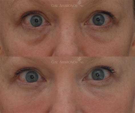 black under eye under eye fillers for dark circles bags and hollowness