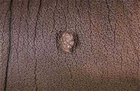 virusul papiloma uman generalitati hpv si cancerul de col uterin