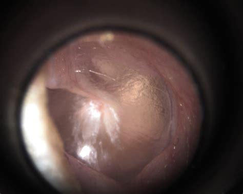 ear canal surfers ear exostosis of the external ear canal