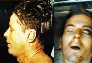 Kennedy assassination autopsy pictures the kennedy assassination