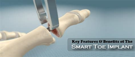 Mba Implant Surgery Foot Problems by Key Features Benefits Of The Smart Toe Implant