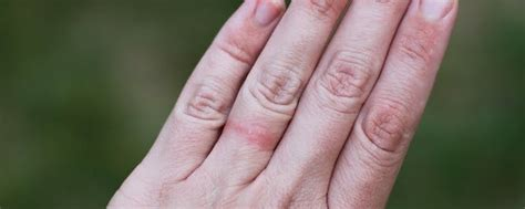 what is dermatitis health life media