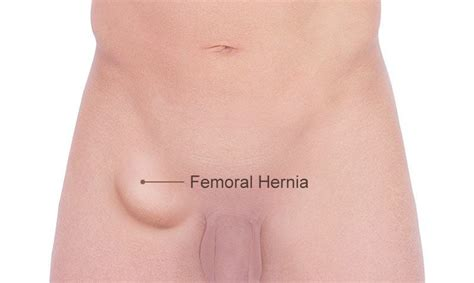 about your hernia inguinal hernia symptoms causes the gallery for gt femoral hernia female