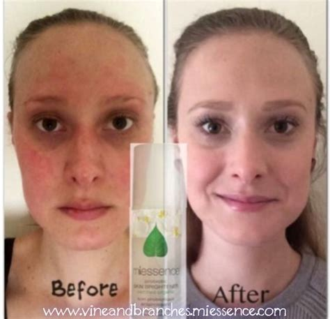 Detox Before And After Skin by Cleanser Before After And Just Because On