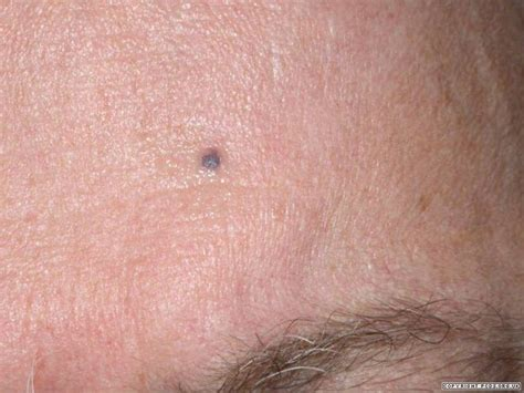 light colored spots on skin flat brown black or blue lesions less than 1cm diameter