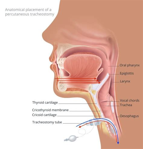 inhalation  exhalation  tracheostomy