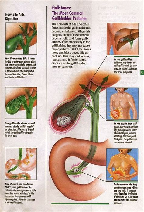 Does Gallbladder Detox Work by Liver Gallbladder Flush