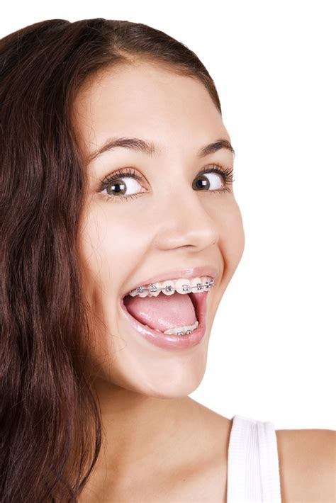 apparecchio interno fisso apparecchio fisso cibi da evitare specialisti sorriso