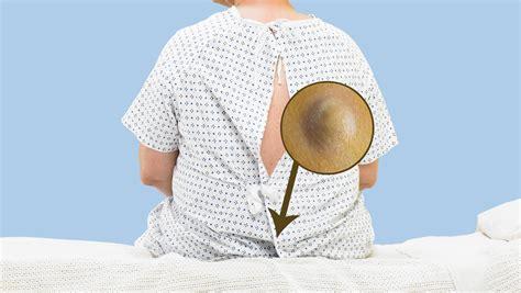 pilonidal cyst mri pilonidal cyst symptoms treatment franciscan health
