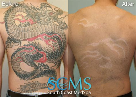 back tattoo remover video laser tattoo removal thinglink
