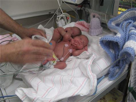 twins born at 25 weeks uc san diego medical center expands neonatal intensive