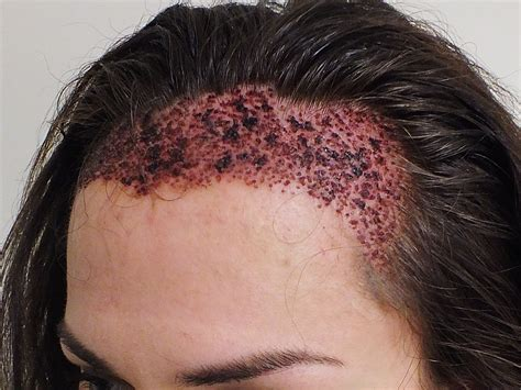 permanent head hair without surgery is hair transplant for women effective results fue or