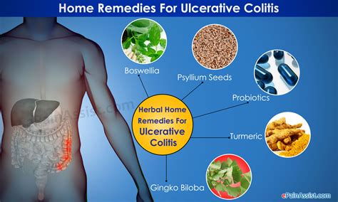home remedies for ulcerative colitis diet herbs exercise