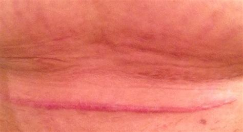red c section scar anyone want to share current c section scar pics page 4