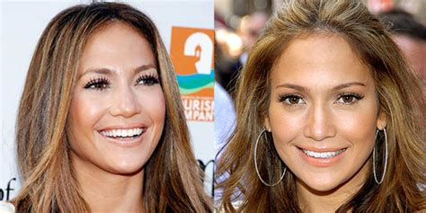 jennifer lopez nose job before and after pictures 2018