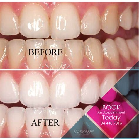 images  teeth whitening  pinterest teeth