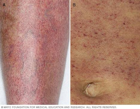 Blood In Stool And Skin Rash by Idiopathic Thrombocytopenic Purpura Itp Symptoms And