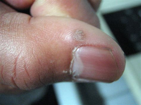 creatine rash creatine allergy urticaria