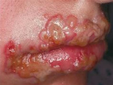 herpes interno information about herpes 1 and herpes 2 define holistic