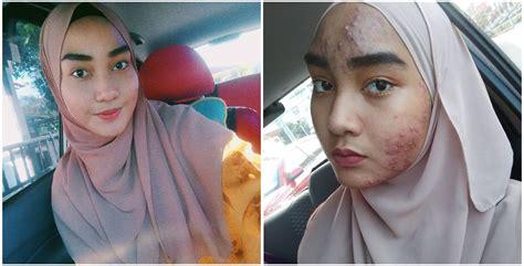 Cantik Serba Guna Uk Besar gadis dakwa mukanya alami masalah kulit teruk selepas berhenti guna sejenis produk kecantikan