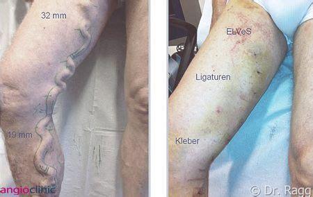 extreme tattoo münchen besenreiser und krfadern entfernen info medizin