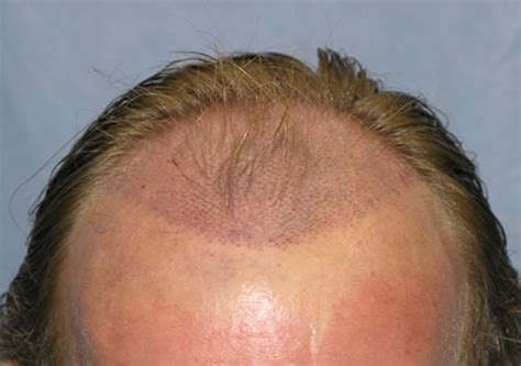 reviews on synthetic hair transplant is hair transplantation safe for men