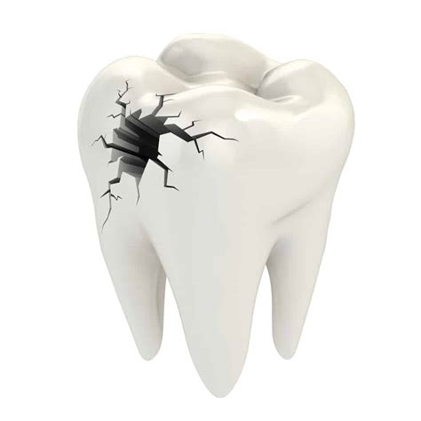 broken tooth broken tooth large filling what are your options reno nv