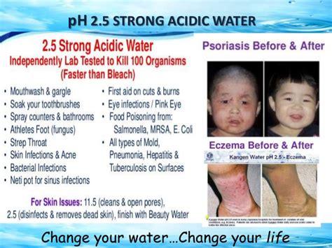 Strong Acid Ph2 5 kangen water india