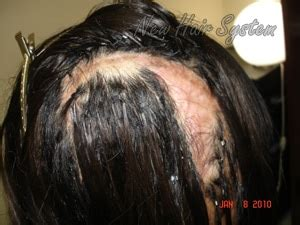 can u glue hair on a bald spot glue in hair extension cause damage new hair system