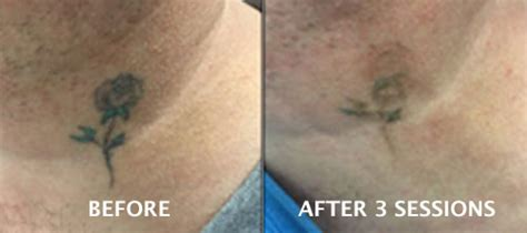 tattoo removal dublin removal dundrum