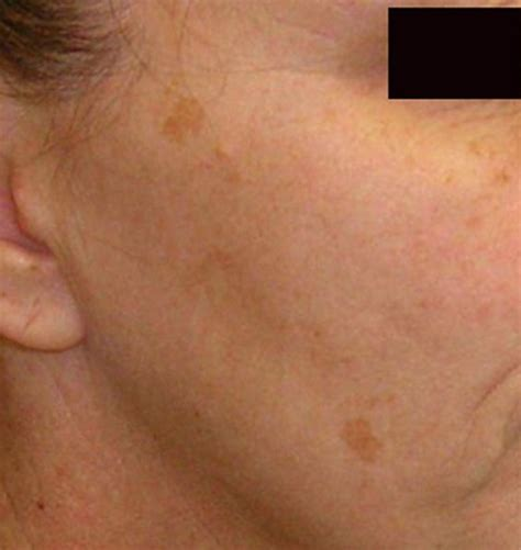 spot causes brown spots on skin pictures causes home remedies treatment