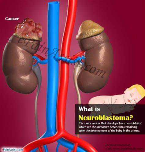 what is st known for what is neuroblastoma its causes stages symptoms