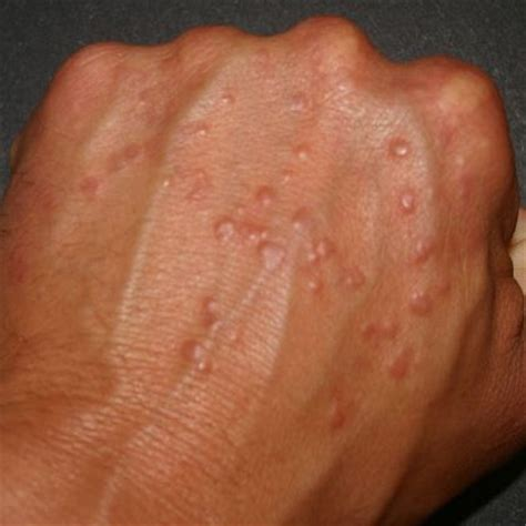 type of disease skin conditions pin by phil n jacque shearer on diabetic living pinterest