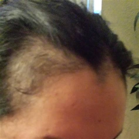 hair style temple bald spots post partum hair loss is this normal pic page 4