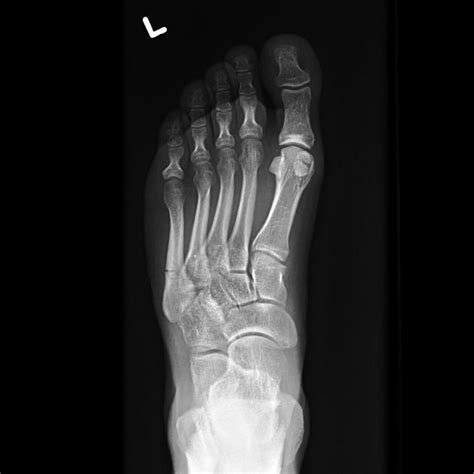 fracture des m 233 tatarsiens thoracotomie