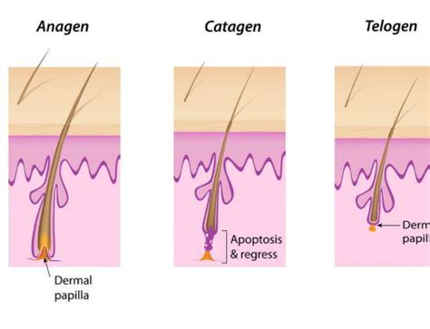ipl vs diode diode laser versus ipl 28 images diode laser permanent hair removal system restore