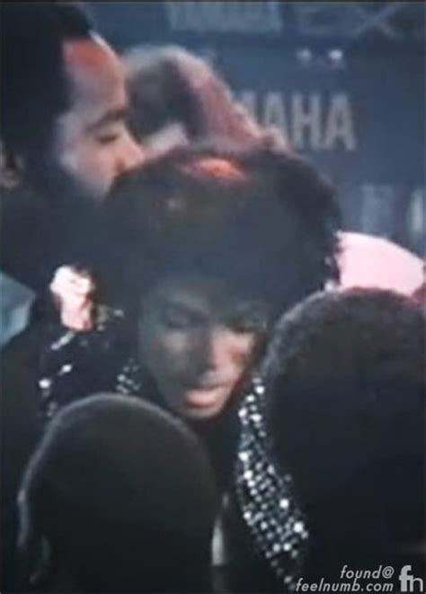 Brotman Detox Center by Michael Jackson S 1984 Pepsi Commercial Hair Burning