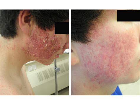 does accutane cause mood swings accutane before and after tumblr remeron antidepressant