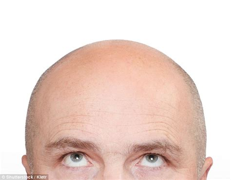 male pattern baldness quiz test to predict baldness is on the way daily mail online