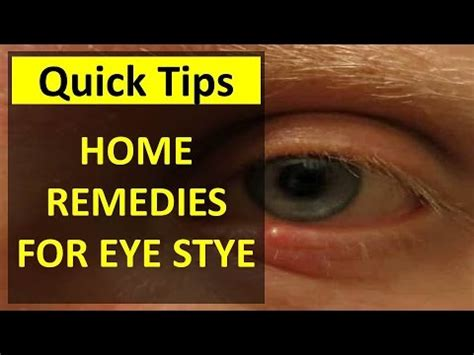 how to treat a stye in your eye home remedies for a stye