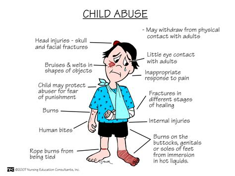 7 Signs Of Abuse by Child Abuse Child Abuse Is More Than Bruises And Broken