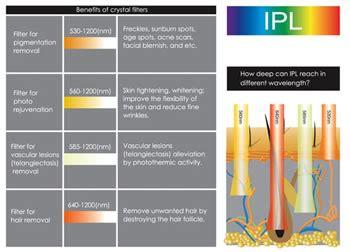 Ipl Light by M 225 Quinas De Luz Pulsada Intensa Ipl Luz Pulsada Intensa