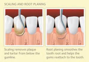 what is cleaning scaling and root planing