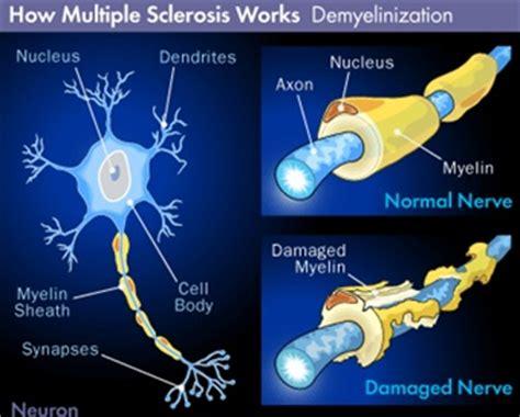 sclerosi multipla sedia a rotelle sclerosi multipla diagnosticare la disabilita disabili