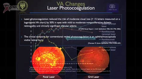 grid pattern laser photocoagulation professor francesco bandello diabetic macular edema