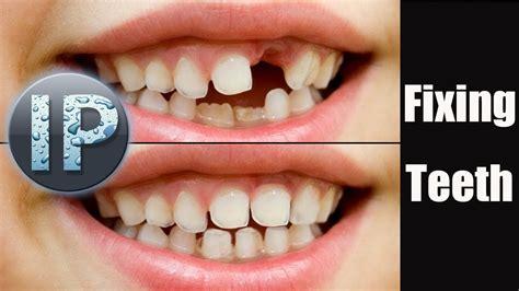 adobe photoshop elements 10 11 fixing crooked teeth